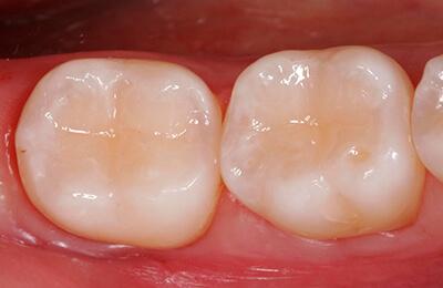 Zahnarztpraxis Bielefeld: Fertig ausgearbeitete Füllungen nach der Politur