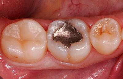 Zahnarztpraxis Bielefeld: Ausgangssituation mit alter Amalgamfüllung an Zahn 46
