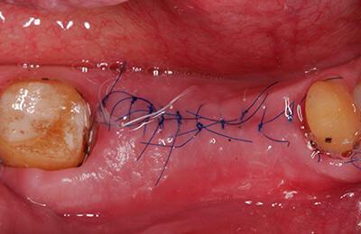 Implantate Bielefeld: Zustand 10 Tage später bei der Nahtentfernung