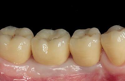 Implantate Bielefeld: Reizfreies Zahnfleisch 4 Jahre später