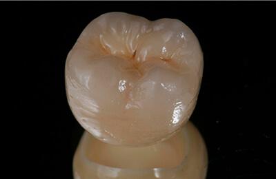 Implantologie Bielefeld: Die vollkeramische Krone vor der Zementierung