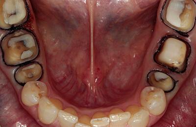 Kronen Bielefeld: Fertig aufgebaute und präparierte Zähne im Unterkiefer