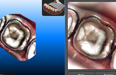 Kronen Bielefeld: Abformung der Zähne mit dem Laserscanner