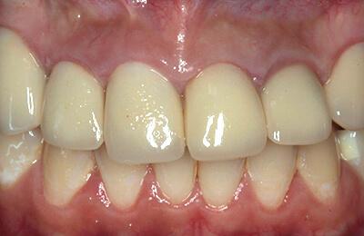 Zahnprothetik Bielefeld: Ausgangssituation mit stark entzündetem Zahnfleisch