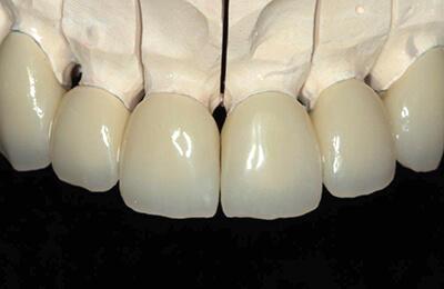 Zahnprothetik Bielefeld: Laborgefertigte Provisorien auf dem Modell