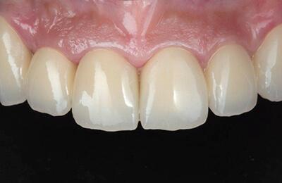 Zahnprothetik Bielefeld: Zementiertes Langzeitprovisorium mit ausgeheiltem Zahnfleisch