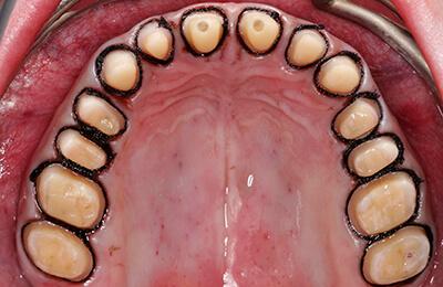 Prothetik Bielefeld: Minimal beschliffene Zähne mit maximalem Erhalt des Schmelzes