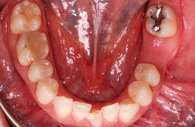 Implantat: Unterkiefer vor Versorgung
