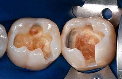 Zahnarztpraxis Bielefeld: Zustand nach Entfernung der alten Füllungen unter Kofferdam