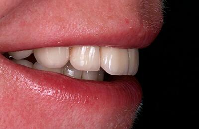 Komplexe Fälle: Die Patientin ist sehr zufrieden und lacht nun gerne wieder
