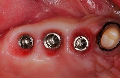 Komplexe Fälle: Die drei Implantate im Oberkiefer vor der Abformung
