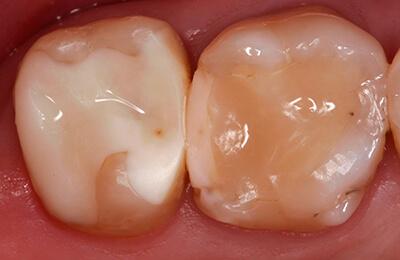 Zahnarztpraxis Bielefeld: Überkronungsbedürftige Zähne 17 und 16