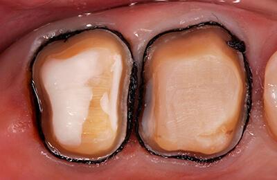 Zahnarztpraxis Bielefeld Kronen: Perfekte Präparation mit Darstellung der Kronenränder
