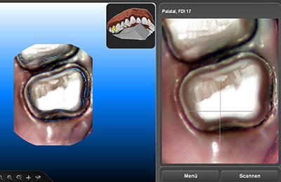 Zahnarztpraxis Bielefeld: Digitale Abdrucknahme mit dem Laserscanner