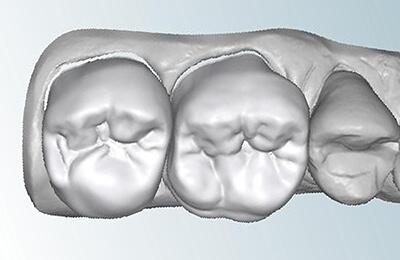 Zahnarztpraxis Bielefeld: Digitalisierter Datensatz mit computergenerierten Kronen