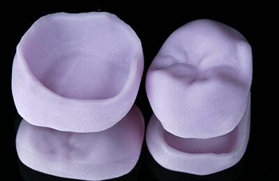 Zahnarztpraxis Bielefeld: Gefräßte Kronen aus Lithiumdisilikat im Rohzustand