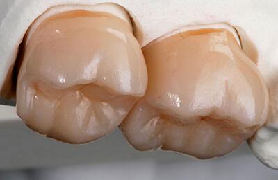 Zahnarztpraxis Bielefeld: Perfekte Passung auf dem Modell