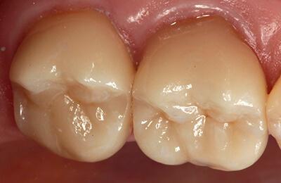 Zahnarztpraxis Bielefeld: Perfekte, übergangslose Passung nach dem Verkleben im Mund