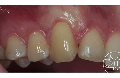 Zahnfleischchirurgie Bielefeld