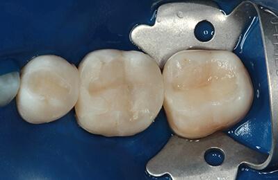 Zahnarztpraxis Bielefeld: Neu eingebrachte Kunststofffüllungen