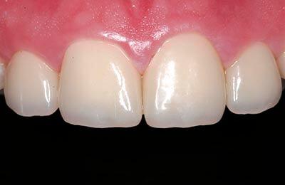 Zahnprothetik Bielefeld: Eingeklebte Provisorien mit reizfreiem Zahnfleisch
